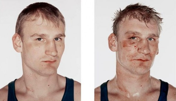 http://www.blogoftheworld.com/wp-content/uploads/2013/09/nicolai-howalt-boxers-before-and-after-091.jpg